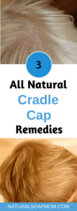 Looking for a natural cradle cap remedy? The solution is closer and easier than you think. Infants and toddlers can have a clear scalp. Coconut oil is one natural remedy - learn all 3! Learn how to get rid of cradle cap on your baby today! @naturalsoapmom.com #cradlecap #naturalbaby #babyskinproblems #haircare #coconutoil #bakingsoda #cradlecapshampoo #Babycare #Newborn #Naturalskincare #Cradlecap #Babies #Babyskin