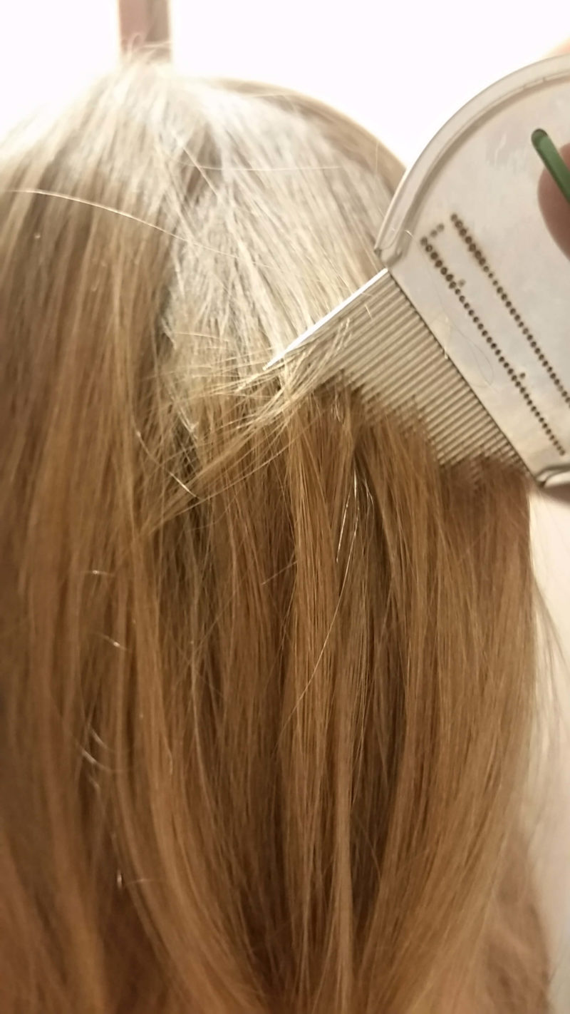 The Best Lice Treatment For Kids How To Kill Lice Fast Safely